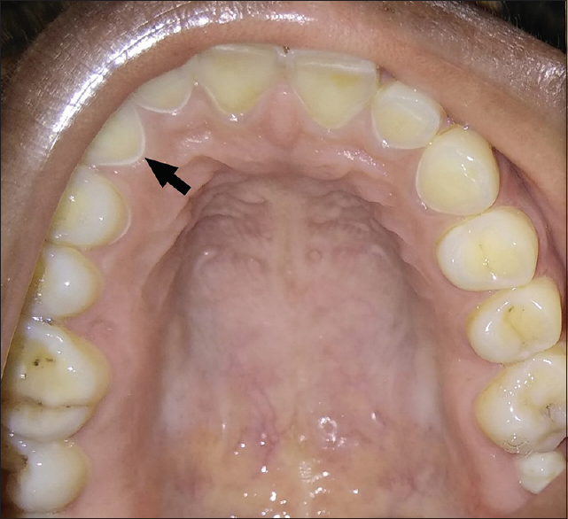 Figure 1: Dental erosion on palatal surface of maxillary upper anteriors